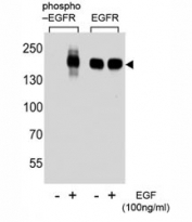 Western blot analysis of extracts from A431 cell, untreated or treated with EGF, using phospho-EGFR antibody (left) or nonphos Ab (right).