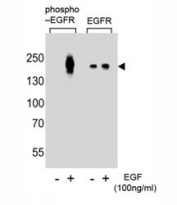 Western blot analysis of lysate from A431 cells (left to right), untreated or treated with EGF at 100ng/ml, using phospho-EGFR antibody (pY1016) or nonphos Ab at 1:8000 dilution.