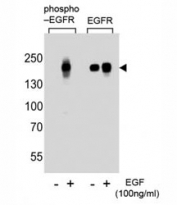 Western blot analysis of lysate from A431 cells (left to right), untreated or treated with EGF at 100ng/ml, using phospho-EGFR antibody (pS768) or nonphos Ab at 1:1000 dilution.