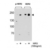 Western blot analysis of extracts from T47D cells, untreated or treated with NRG, using p-HER2 antibody (left) or nonphos Ab (right).