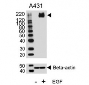 Western blot analysis of lysate from A431 cell line, untreated or treated with EGF (100ng/ml), using phospho-ErbB2 antibody.
