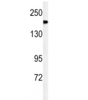 Western blot analysis of A2ML1 antibody and mouse lung tissue lysate. Predicted molecular weight ~161 kDa.
