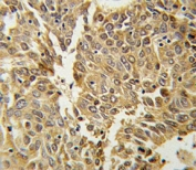HIF1 alpha antibody IHC analysis in formalin fixed and paraffin embedded lung carcinoma.