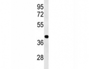 Western blot analysis of ATF1 antibody and human Jurkat lysate. Routinely observed molecular weight: 29-35 kDa.