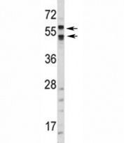 Western blot analysis of CA9 antibody and HepG2 lysate. Predicted molecular weight: 58 kDa and 54 kDa (soluble form).