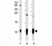 Western blot analysis of lysate from (1) A431 cell line, (2) mouse brain and (3) rat brain tissue using S100B antibody at 1:1000.  Predicted size: 11 kDa with a 21 kDa homodimer