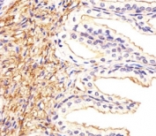 Immunohistochemical analysis of paraffin-embedded human prostate section using ATF6 beta antibody at 1:25.