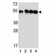 Western blot analysis of TUBB2C antibody and (1) HeLa, (2) MDA-MB435, (3) MDA-MB231, and (4) HepG2 lysate.