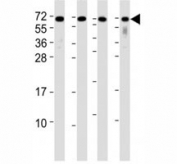 Western blot testing of CD63 antibody at 1:2000 dilution. Lane 1: A2058 lysate; 2: A375 lysate; 3: THP-1 lysate; 4: U-87 MG lysate; Predicted molecular weight: 25-60 kDa depending on glycosylation level.