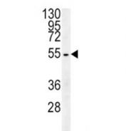 Beta III Tubulin antibody western blot analysis in HepG2 lysate