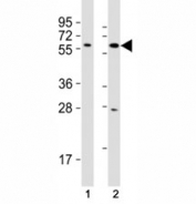 Western blot testing of SOX10 antibody at 1:2000 dilution. Lane 1: C6 lysate; 2: A375 lysate; Predicted molecular weight: 50~58 kDa.