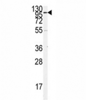 Western blot analysis of ACE2 antibody and K562 lysate. Predicted molecular weight: 90-100 kDa.