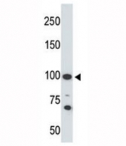 Western blot testing of Angiotensin-converting enzyme 2 antibody and 293 cell lysate. Predicted molecular weight: 90-100 kDa.