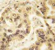 IHC analysis of FFPE human lung carcinoma tissue stained with p53 antibody