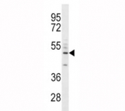 CD14 antibody western blot analysis in A549 lysate. Predicted size 40-55 kDa depending on glycosylation level