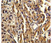 IHC analysis of FFPE human hepatocarcinoma stained with ABCG1 antibody