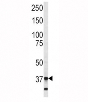Western blot analysis of Annexin V antibody and SK-BR-3 lysate. Predicted molecular weight ~36 kDa.