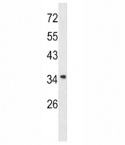 Western blot analysis of Annexin A1 antibody and A2058 lysate. Predicted molecular weight ~36 kDa.