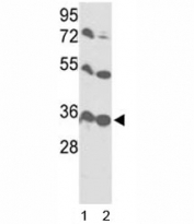 Western blot analysis of VDAC1 antibody and 1) HL-60 and 2) Y79 lysate.
