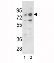 Western blot analysis of PLZF antibody and 1) 293 and 2) K562 lysate. Predicted molecular weight: 74-81 kDa.
