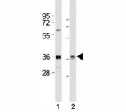 Western blot testing of PAX4 antibody at 1:2000 dilution. Lane 1: HeLa lysate; 2: rat liver lysate; Predicted molecular weight ~38 kDa.