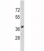 Western blot analysis of SPARC antibody and Y79 lysate. Predicted molecular weight 35-45 kDa depending on glycosylation level