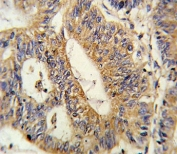 IHC analysis of FFPE human colon carcinoma stained with IL17RB antibody