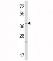 Western blot analysis of WNT1 antibody and mouse heart tissue lysate. Expected/observed molecular weight ~41kDa.