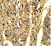 IHC analysis of FFPE human lung carcinoma with HSP60 antibody.