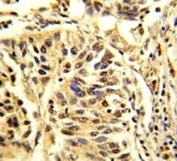 IHC analysis of FFPE human lung carcinoma stained with CEBPB antibody