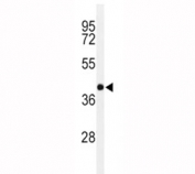 Western blot analysis of PAX-6 in Y79 lysate. Predicted molecular weight ~48kDa.