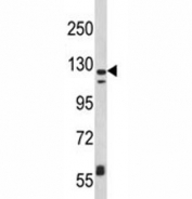 Western blot analysis of CD11c antibody and MDA-MB231 lysate. Predicted size: 128~150 kDa