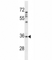 Aurora-C antibody western blot analysis in MDA-MB231 lysate. Predicted molecular weight ~33 kDa.