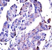 AKT2 antibody immunohistochemistry analysis in formalin fixed and paraffin embedded human lung adenocarcinoma.