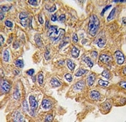 IHC analysis of FFPE human lung carcinoma tissue stained with AKT2 antibody