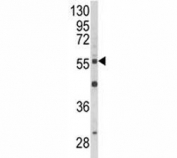 Western blot analysis of AKT2 antibody and NCI-H460 lysate. Predicted molecular weight: ~56kDa.