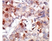 IHC analysis of FFPE human breast carcinoma tissue stained with the AKT3 antibody
