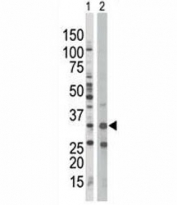 AMPK beta 1 antibody used in western blot to detect PRKAB1 in Jurkat cell lysate (Lane 1) and mouse spleen tissue lysate (2).