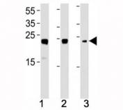 HMGB2 antibody western blot analysis in (1) HL-60, (2) K562, (3) H-4-II-E lysate. Expected molecular weight ~24 kDa.