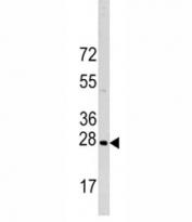 Western blot analysis of HSP27 antibody (HSPB1) and HeLa lysate.