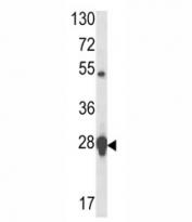 Western blot analysis of HSP27 antibody and MCF-7 lysate