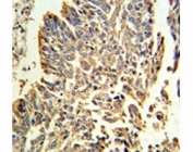 HSP27 antibody IHC analysis in formalin fixed and paraffin embedded human lung carcinoma.