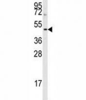 Western blot analysis of Aurora-B antibody and HepG2 lysate. Predicted molecular weight: 39-45 kDa