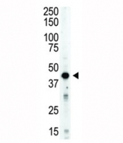 Aurora B antibody used in western blot to detect STK12/AuroraB in mouse spleen tissue lysate. Predicted molecular weight: 39-45 kDa