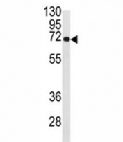 Western blot analysis of CDC25B antibody and Ramos lysate. Expected/observed molecular weight: 61~67kDa (isoforms 1-4).