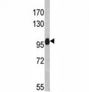 Western blot analysis of anti-NLRP12 antibody and HL-60 lysate. Predicted molecular weight: ~119kDa, routinely observed at 100~119kDa.