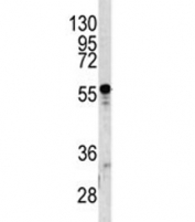 Western blot analysis of A1BG antibody and human T47D lysate. Predicted molecular weight ~55 kDa.