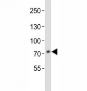 Western blot analysis of lysate from HepG2 cell line using anti-PCSK9 antibody at 1:1000. Predicted size: Pro/mature ~74/64 kDa