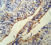 Anti-PCSK9 antibody IHC analysis in formalin fixed and paraffin embedded human colon carcinoma.