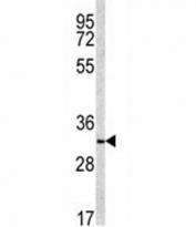 Western blot analysis of NQO1 antibody and NCI-H460 lysate. Predicted molecular weight ~30kDa.